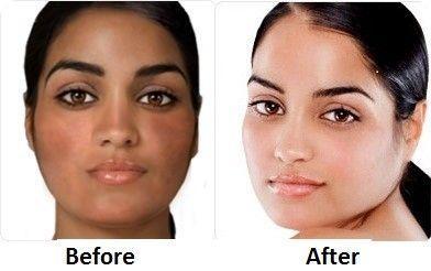 natural skin whitening tips